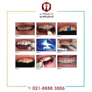 نحوه نصب کامپوزیت دندان به چه شکلی است؟