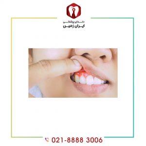 التهاب لثه بعد از کامپوزیت ونیر دندان به چه دلایلی اتفاق می افتد؟