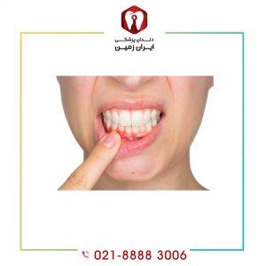 التهاب لثه بعد از لمینت دندان چرا و چگونه ایجاد می شود؟