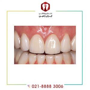 لمینت دندان فک پایین چه زمانی انجام می شود؟
