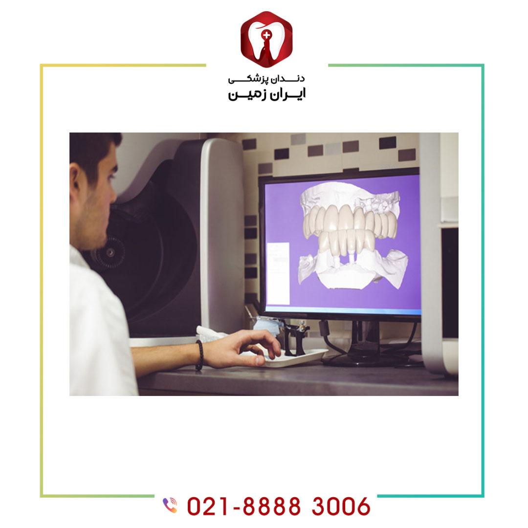 هزینه ایمپلنت دندان دیجیتالی چگونه محاسبه می شود؟