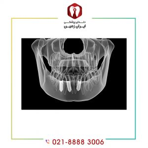 ایمپلنت دندان دیجیتالی برای چه کسی مناسب است؟