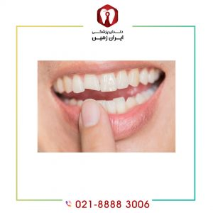 علت لب پر شدن ونیر دندان چیست؟ چگونه از بروز آن پیگیری کنیم؟
