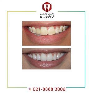 علل کاهش طول عمر کامپوزیت دندان شامل چه مواردی می شود؟