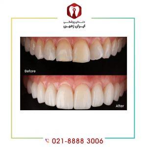 کامپوزیت بهتر است یا روکش دندان ؟