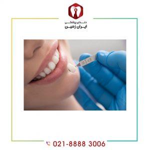 لمینت دندان بهتر است یا کامپوزیت دندان ؟