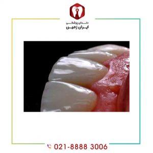 مشکلات لمینت دندان چیست؟ چگونه می توان از این مشکلات پیشگیری کرد؟