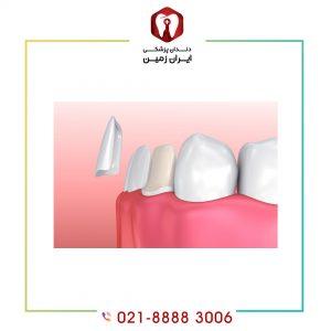 تراش دندان برای لمینت دندان به چه میزانی انجام می شود؟