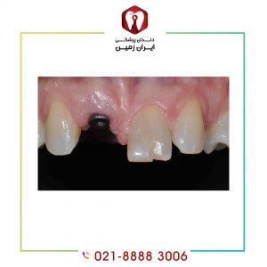 قیمت ایمپلنت دندان یک روزه بر چه اساسی محاسبه می شود؟