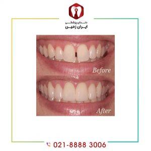 ونیر دندان فاصله دار به چه معنا است؟
