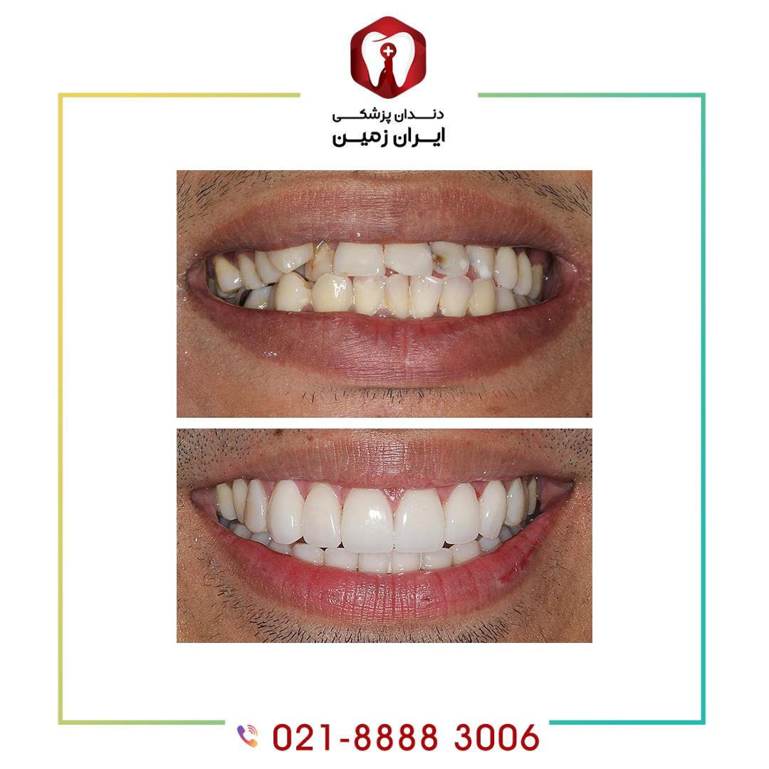 کامپوزیت ونیر دندان کج باعث زیباشدن لبخند شما می شود
