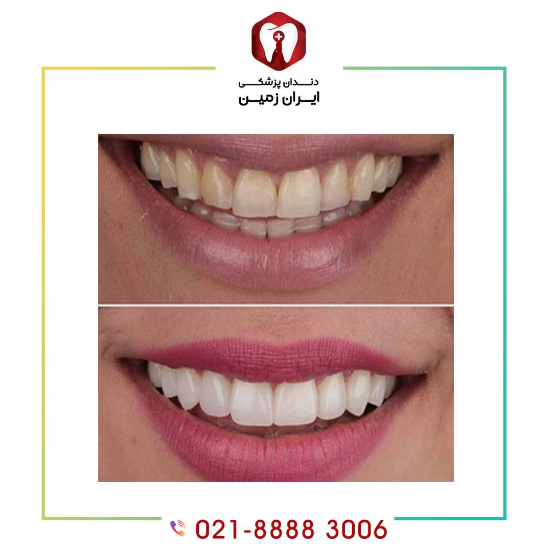 مشکلات کامپوزیت ونیر دندان از محبوبیت آن نمی کاهد